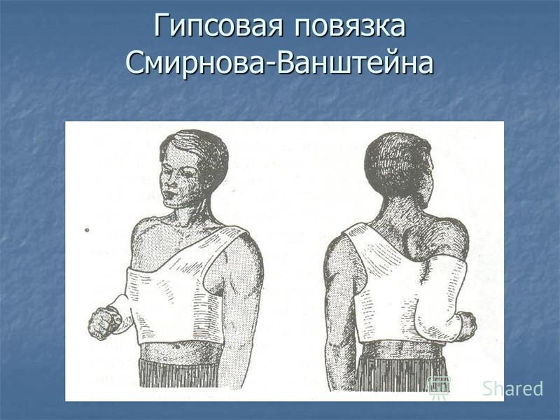 Гипсовая повязка Смирнова-Ванштейна