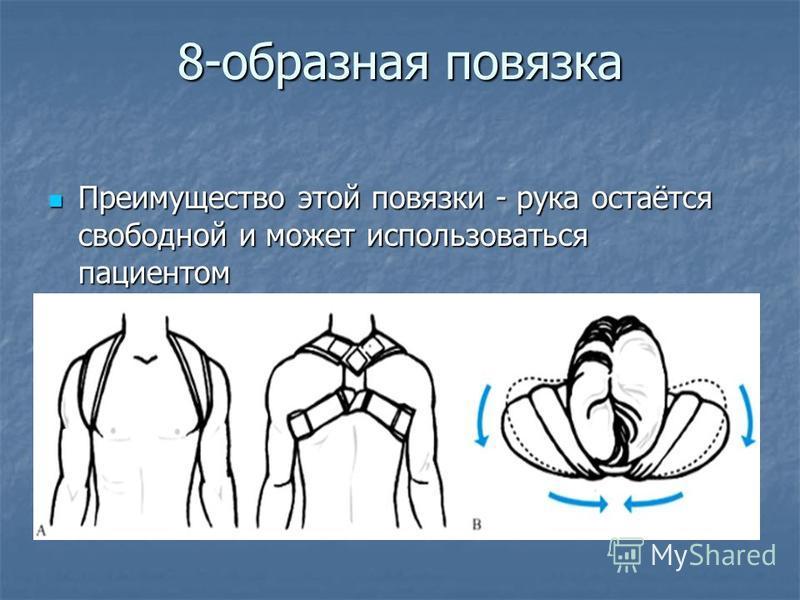 Преимущество этой повязки - рука остаётся свободной и может использоваться пациентом Преимущество этой повязки - рука остаётся свободной и может использоваться пациентом