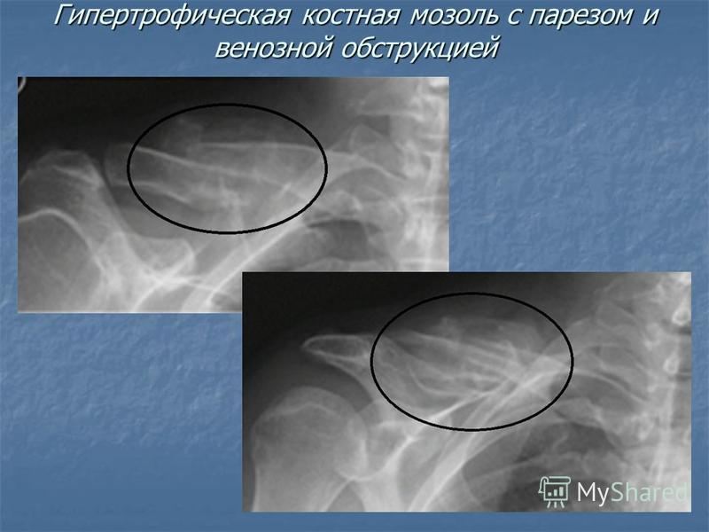 Гипертрофическая костная мозоль с парезом и венозной обструкцией