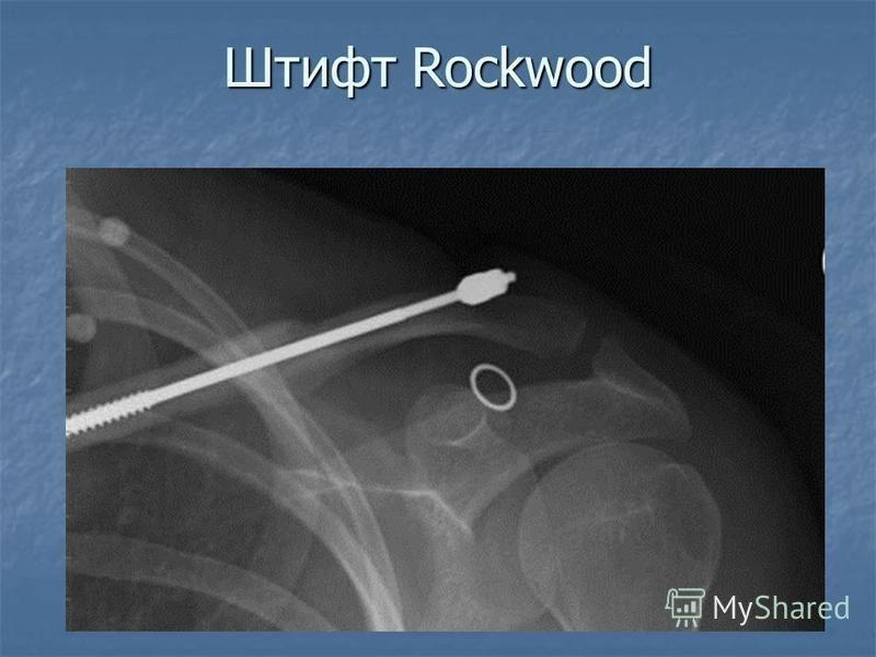 Штифт Rockwood