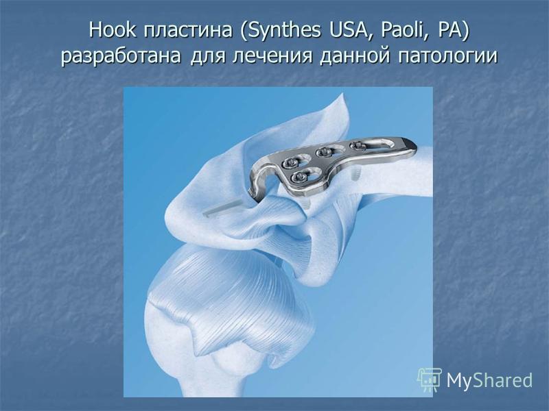 Hook пластина (Synthes USA, Paoli, PA) разработана для лечения данной патологии Hook пластина (Synthes USA, Paoli, PA) разработана для лечения данной патологии