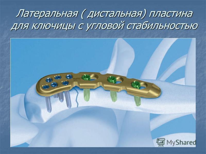 Латеральная ( дистальная) пластина для ключицы с угловой стабильностью