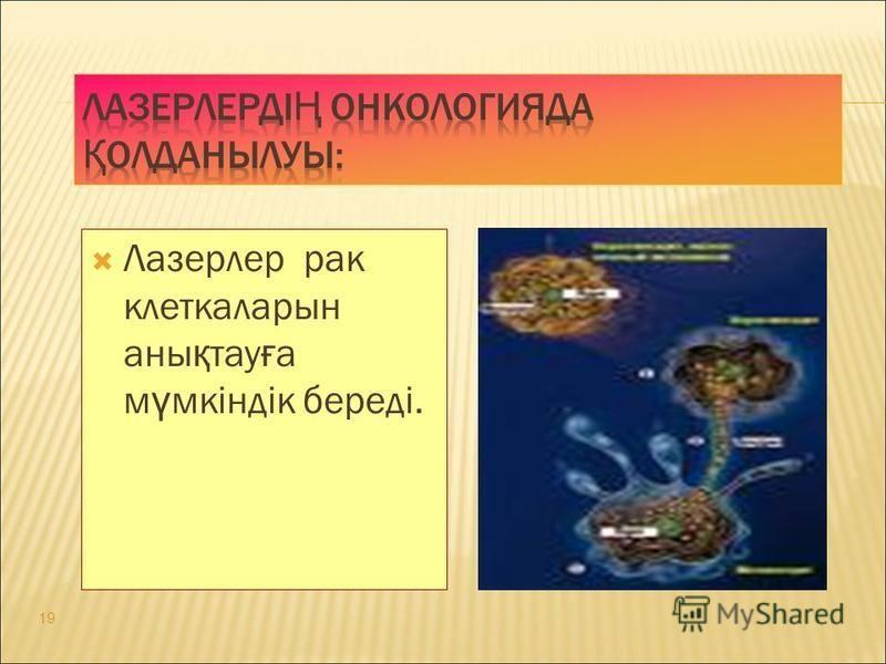 Лазерлер рак клеткаларын аны қ тау ғ а м ү мкіндік береді. 19