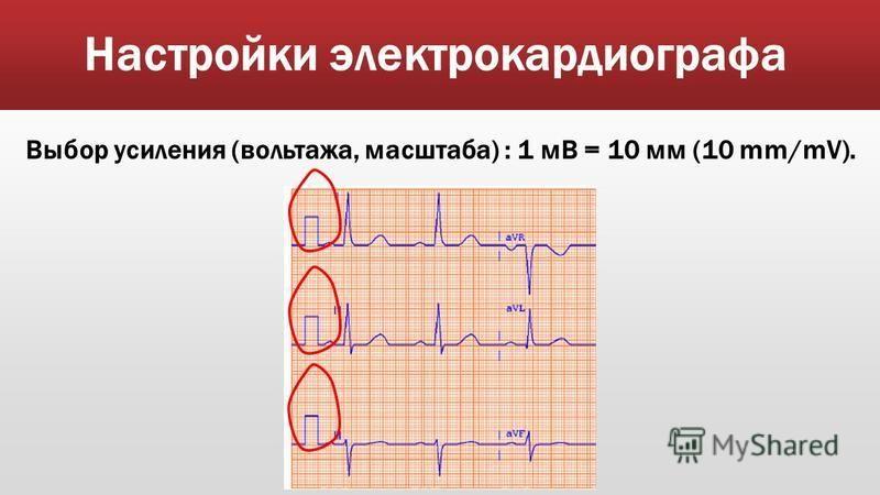 Настройки электрокардиографа Выбор усиления (вольтажа, масштаба) : 1 мВ = 10 мм (10 mm/mV).