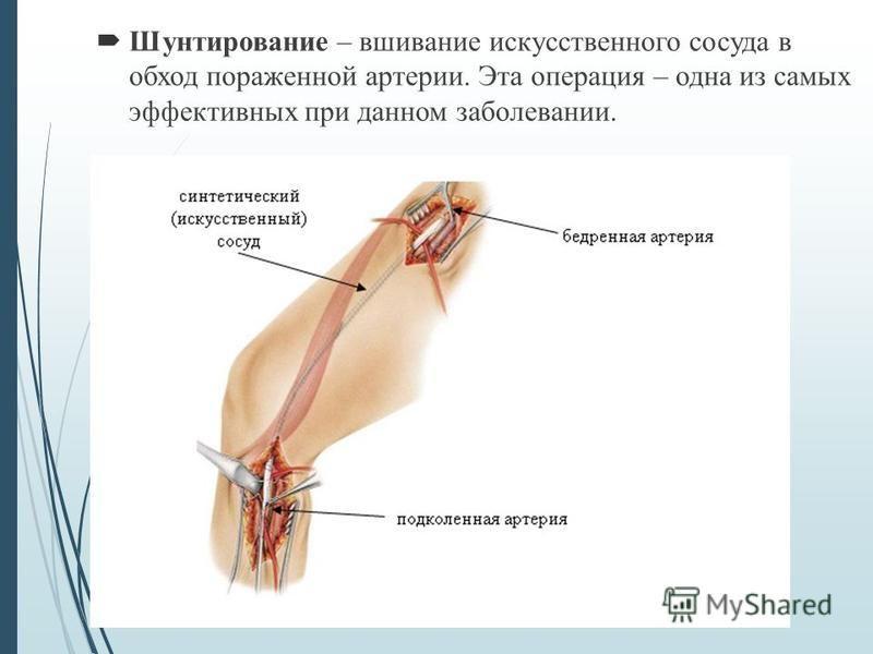 Шунтирование – вшивание искусственного сосуда в обход пораженной артерии. Эта операция – одна из самых эффективных при данном заболевании.