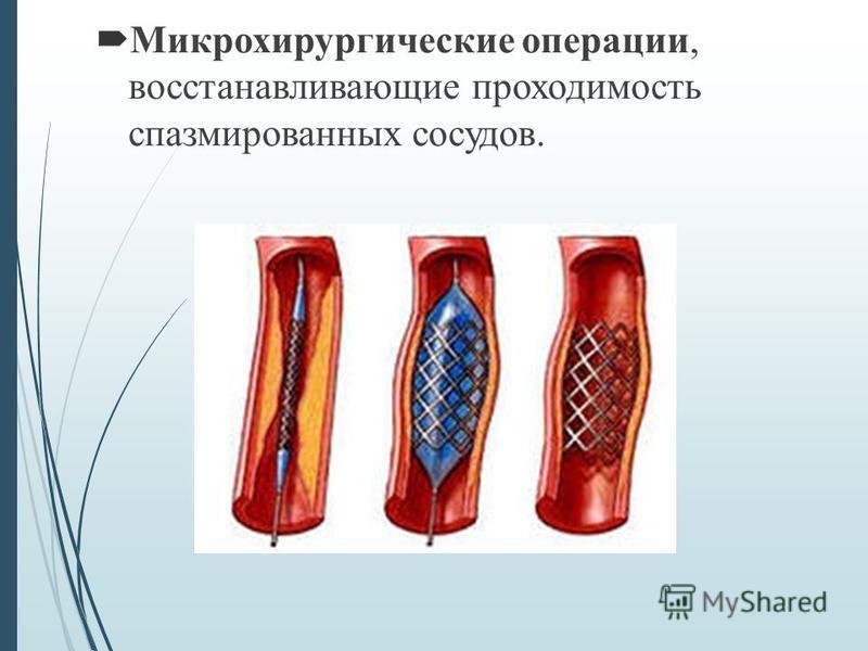 Микрохирургические операции, восстанавливающие проходимость спазмированных сосудов.
