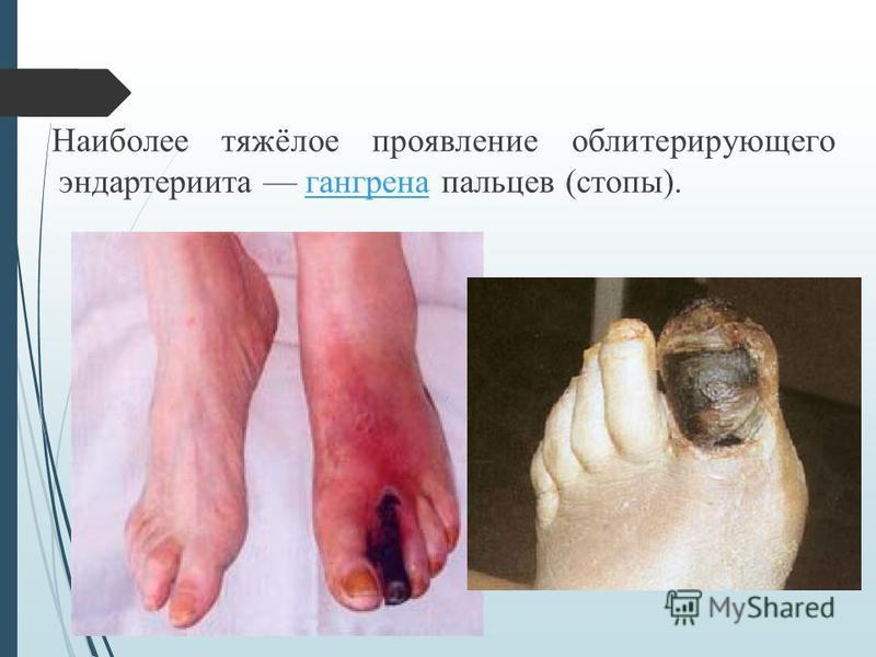 Наиболее тяжёлое проявление облитерирующего эндартериита гангрена пальцев (стопы).гангрена