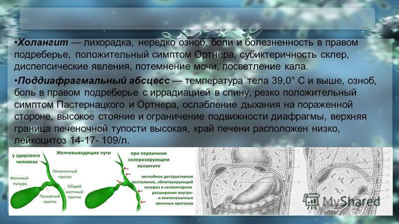 Холангит лихорадка, нередко озноб, боли и болезненность в правом подреберье, положительный симптом Ортнера, субиктеричность склер, диспепсические явления, потемнение мочи, посветление кала. Поддиафрагмальный абсцесс температура тела 39,0° С и выше, о