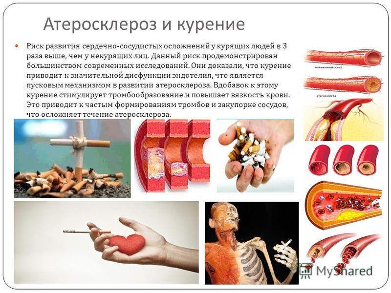 Атеросклероз и курение Риск развития сердечно - сосудистых осложнений у курящих людей в 3 раза выше, чем у некурящих лиц. Данный риск продемонстрирован большинством современных исследований. Они доказали, что курение приводит к значительной дисфункци