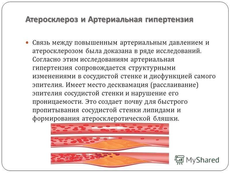 Атеросклероз и Артериальная гипертензия Связь между повышенным артериальным давлением и атеросклерозом была доказана в ряде исследований. Согласно этим исследованиям артериальная гипертензия сопровождается структурными изменениями в сосудистой стенке