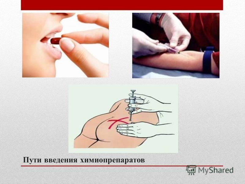 Пути введения химиопрепаратов