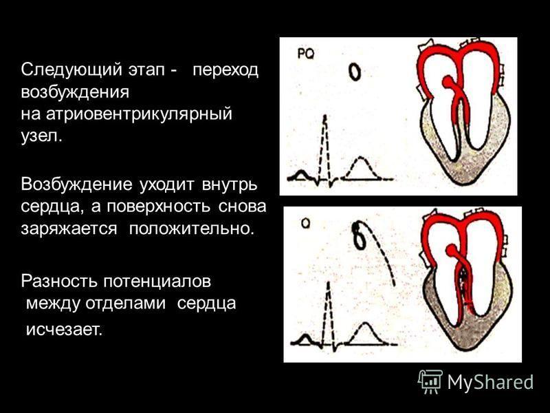 Следующий этап - переход возбуждения на атриовентрикулярный узел. Возбуждение уходит внутрь сердца, а поверхность снова заряжается положительно. Разность потенциалов между отделами сердца исчезает.