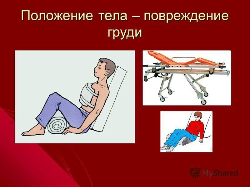 Положение тела – повреждение груди