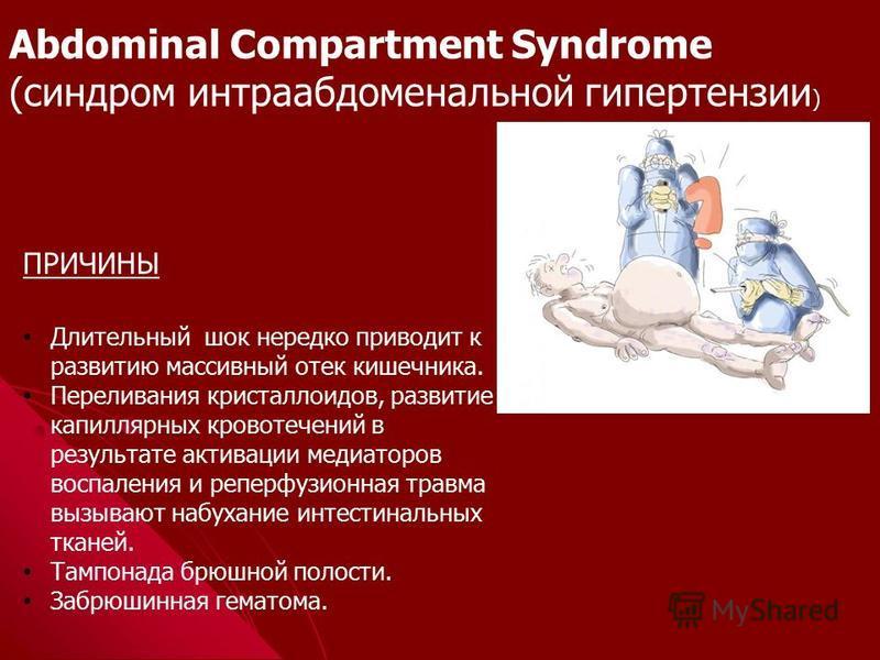 Abdominal Compartment Syndrome (синдром интраабдоменальной гипертензии ) ПРИЧИНЫ Длительный шок нередко приводит к развитию массивный отек кишечника. Переливания кристаллоидов, развитие капиллярных кровотечений в результате активации медиаторов воспа