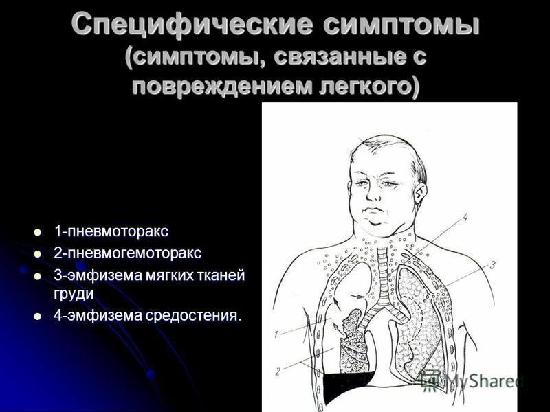 Специфические симптомы (симптомы, связанные с повреждением легкого) 1-пневмоторакс 1-пневмоторакс 2-пневмогемоторакс 2-пневмогемоторакс 3-эмфизема мягких тканей груди 3-эмфизема мягких тканей груди 4-эмфизема средостения. 4-эмфизема средостения.