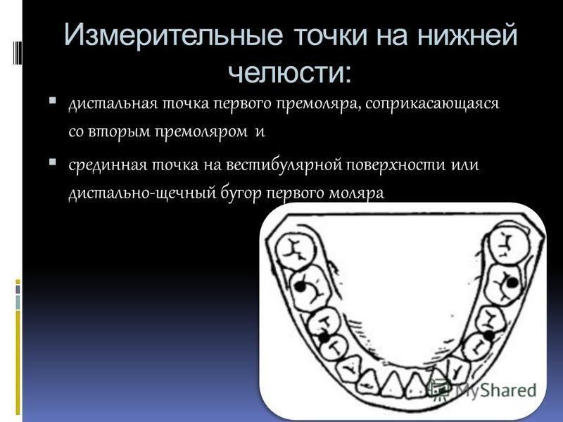 Измерительные точки на нижней челюсти: дистальная точка первого премоляра, соприкасающаяся со вторым премоляром и срединная точка на вестибулярной поверхности или дистально-щечный бугор первого моляра