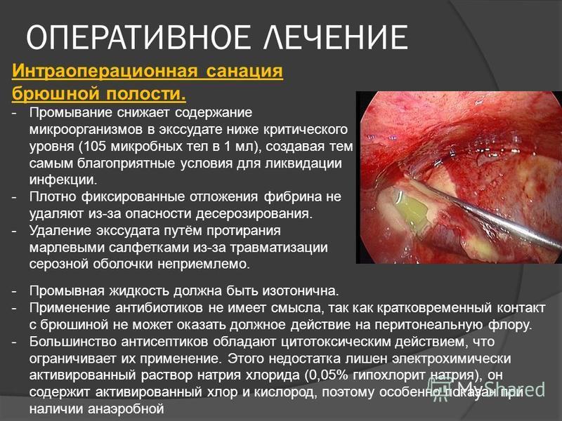 Интраоперационная санация брюшной полости. -Промывание снижает содержание микроорганизмов в экссудате ниже критического уровня (105 микробных тел в 1 мл), создавая тем самым благоприятные условия для ликвидации инфекции. -Плотно фиксированные отложен