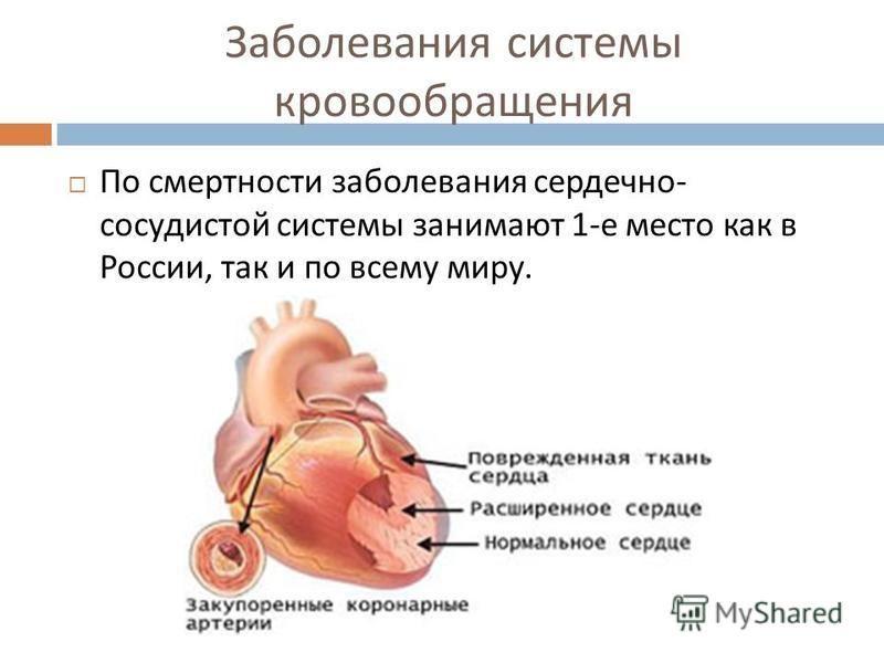 Заболевания системы кровообращения По смертности заболевания сердечно - сосудистой системы занимают 1- е место как в России, так и по всему миру.