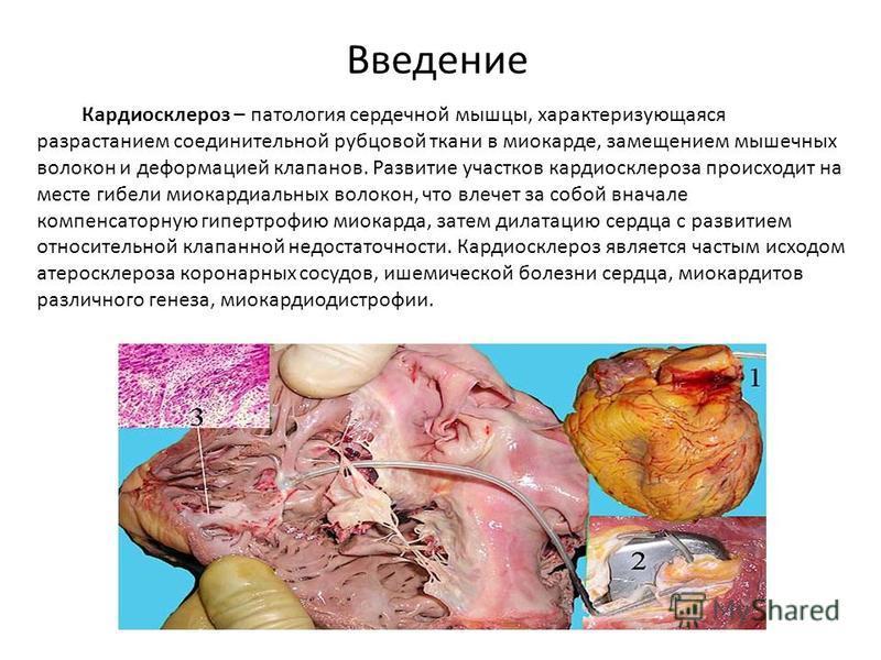 Кардиосклероз – патология сердечной мышцы, характеризующаяся разрастанием соединительной рубцовой ткани в миокарде, замещением мышечных волокон и деформацией клапанов. Развитие участков кардиосклероза происходит на месте гибели миокардиальных волокон