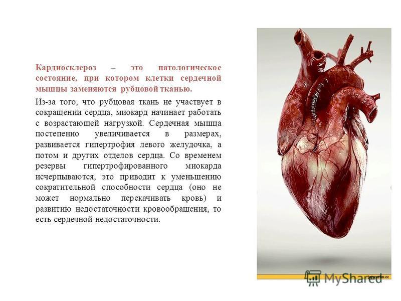 Кардиосклероз – это патологическое состояние, при котором клетки сердечной мышцы заменяются рубцовой тканью. Из-за того, что рубцовая ткань не участвует в сокращении сердца, миокард начинает работать с возрастающей нагрузкой. Сердечная мышца постепен