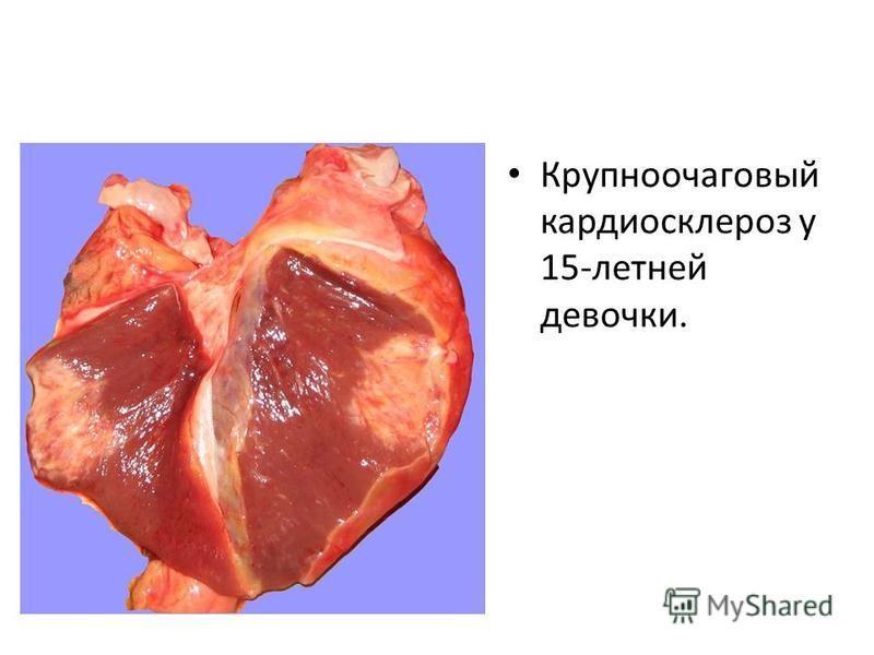 Крупноочаговый кардиосклероз у 15-летней девочки.