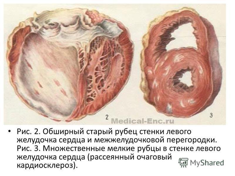 Рис. 2. Обширный старый рубец стенки левого желудочка сердца и межжелудочковой перегородки. Рис. 3. Множественные мелкие рубцы в стенке левого желудочка сердца (рассеянный очаговый кардиосклероз).