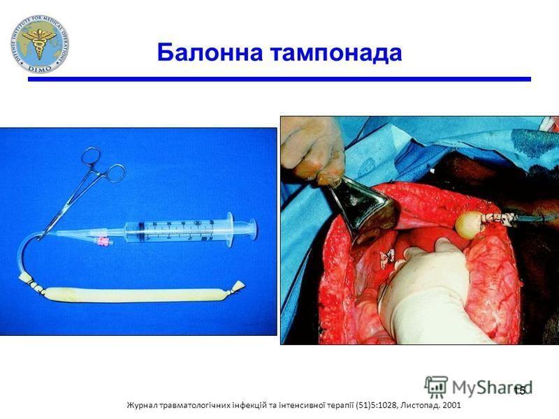 Балонна тампонада Журнал травматологічних інфекцій та інтенсивної терапії (51)5:1028, Листопад. 2001 15