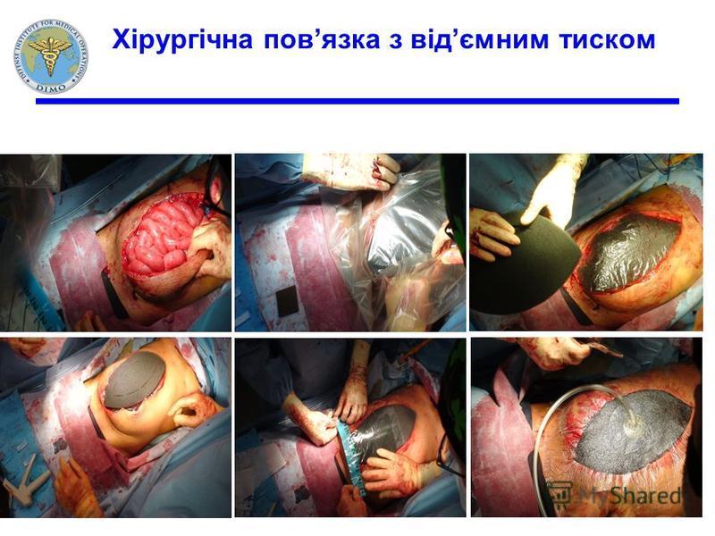Хірургічна повязка з відємним тиском