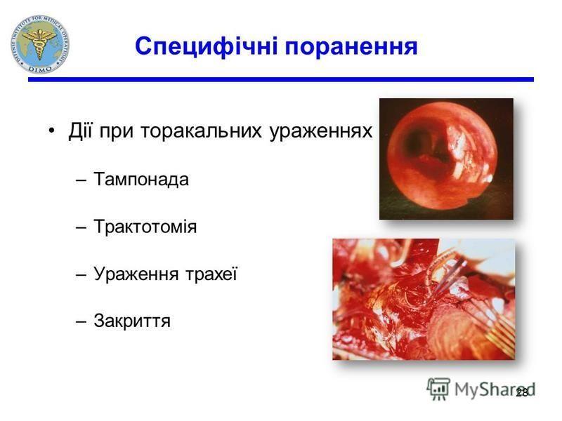 Специфічні поранення Дії при торакальних ураженнях –Тампонада –Трактотомія –Ураження трахеї –Закриття 28