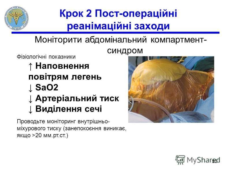 Крок 2 Пост-операційні реанімаційні заходи Моніторити абдомінальний компартмент- синдром Фізіологічні показники Наповнення повітрям легень SaO2 Артеріальний тиск Виділення сечі Проводьте моніторинг внутрішньо- міхурового тиску (занепокоєння виникає,