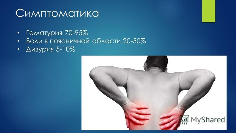 Симптоматика Гематурия 70-95% Боли в поясничной области 20-50% Дизурия 5-10%