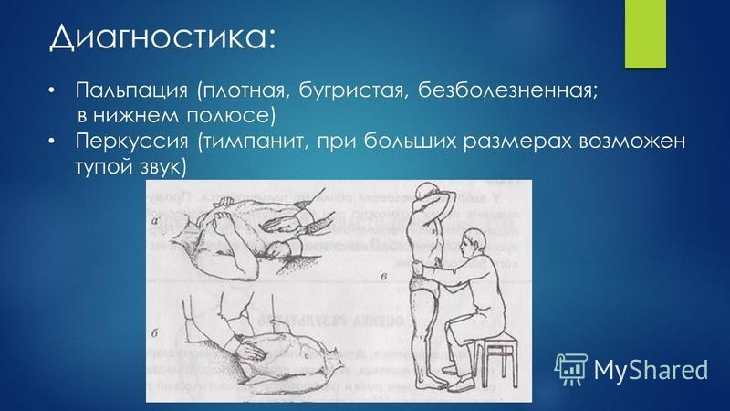 Диагностика: Пальпация (плотная, бугристая, безболезненная; в нижнем полюсе) Перкуссия (тимпанит, при больших размерах возможен тупой звук)