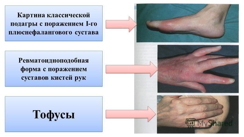 Картина классической подагры с поражением I-го плюснефалангового сустава Ревматоидноподобная форма с поражением суставов кистей рук Тофусы