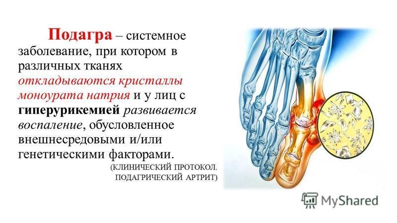 Подагра – системное заболевание, при котором в различных тканях откладываются кристаллы моноурата натрия и у лиц с гиперурикемией развивается воспаление, обусловленное внешнесредовыми и/или генетическими факторами. (КЛИНИЧЕСКИЙ ПРОТОКОЛ. ПОДАГРИЧЕСКИ