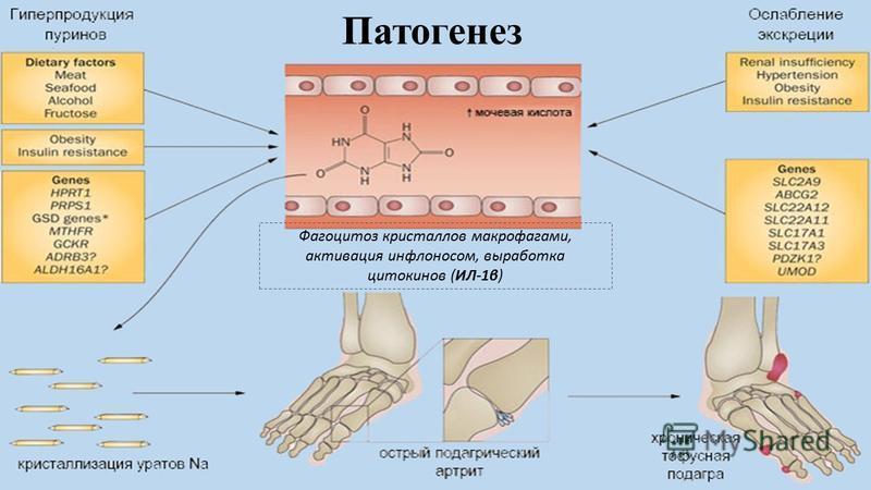 Патогенез Фагоцитоз кристаллов макрофагами, активация инфлоносом, выработка цитокинов (ИЛ-1β)