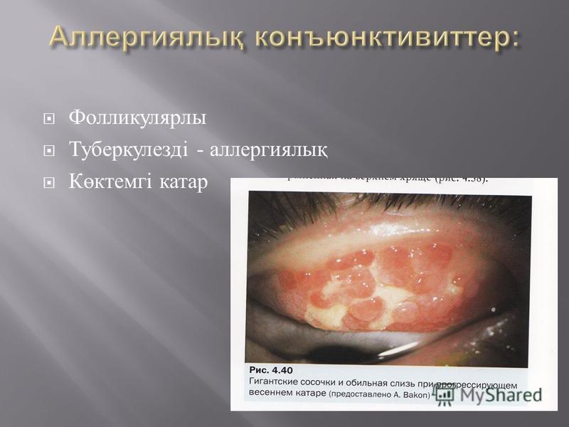 Фолликулярлы Туберкулезді - аллергиялық Көктемгі катар
