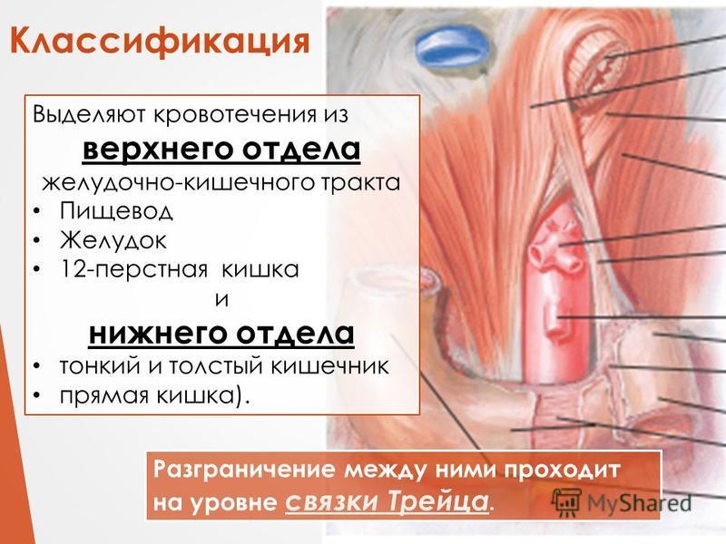 Классификация Разграничение между ними проходит на уровне связки Трейца. Выделяют кровотечения из верхнего отдела желудочно-кишечного тракта Пищевод Желудок 12-перстная кишка и нижнего отдела тонкий и толстый кишечник прямая кишка).
