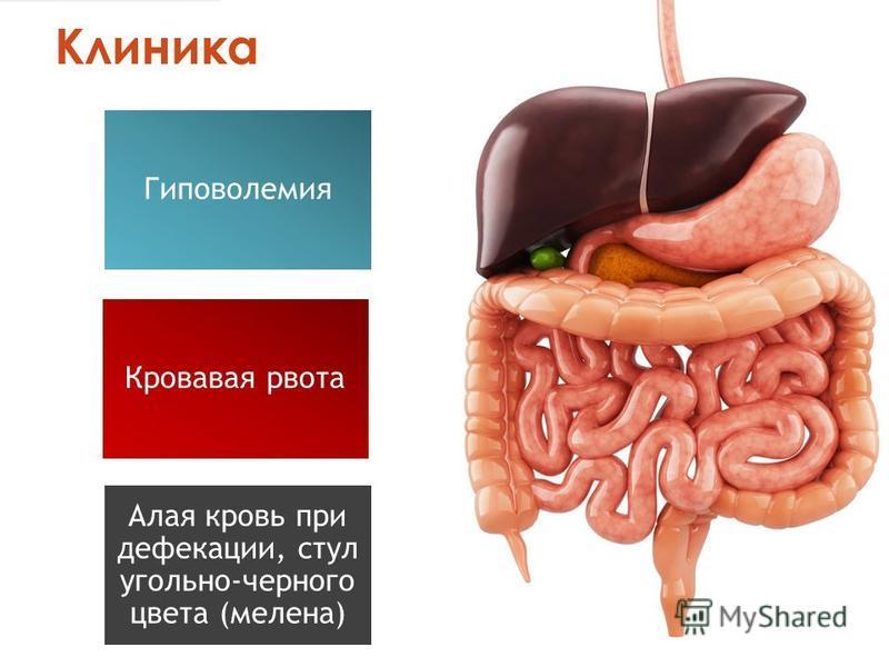 Клиника Гиповолемия Кровавая рвота Алая кровь при дефекации, стул угольно-черного цвета (мелена)