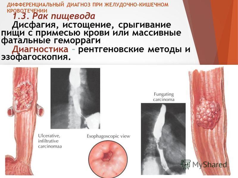 ДИФФЕРЕНЦИАЛЬНЫЙ ДИАГНОЗ ПРИ ЖЕЛУДОЧНО-КИШЕЧНОМ КРОВОТЕЧЕНИИ 1.3. Рак пищевода Дисфагия, истощение, срыгивание пищи с примесью крови или массивные фатальные геморрагии. Диагностика – рентгеновские методы и эзофагоскопия.