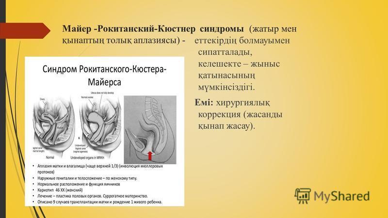 Майер -Рокитанский-Кюстнер синдромы (жатыр мен қынаптың толық аплазиясы) - еттекірдің болмауымен сипоталлоды, келешекте – жыныс қатынасының мүмкінсіздігі. Емі: хирургиялық коррекция (жасанды қынап жасау).