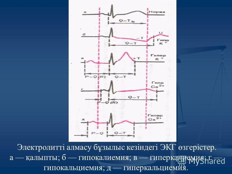 Электролитті алмазу бұзылыс кезіндегі ЭКГ өзгерістер. а қалыпты; б гипокалиемия; в гиперкалиемия; г гипокальциемия; д гиперкальциемия.