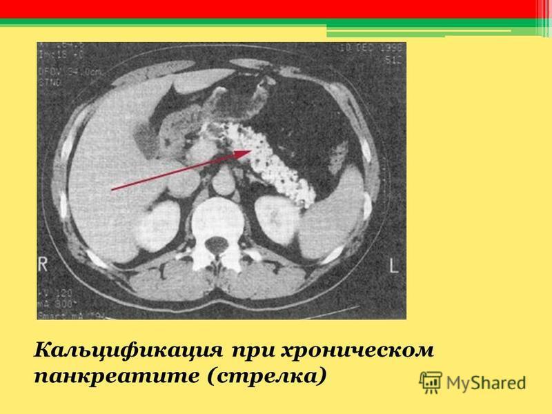 Кальцификация при хроническом панкреатите (стрелка)
