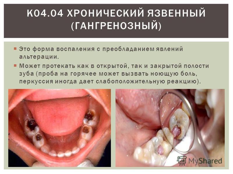 Это форма воспаления с преобладанием явлений альтерации. Может протекать как в открытой, так и закрытой полости зуба (проба на горячее может вызвать ноющую боль, перкуссия иногда дает слабоположительную реакцию). К04.04 ХРОНИЧЕСКИЙ ЯЗВЕННЫЙ (ГАНГРЕНО