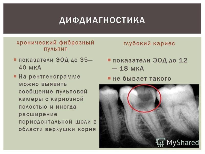 хронический фиброзный пульпит показатели ЭОД до 35 40 мкА На рентгенограмме можно выявить сообщение пульповой камеры с кариозной полостью и иногда расширение периодонтальной щели в области верхушки корня глубокий кариес показатели ЭОД до 12 18 мкА не