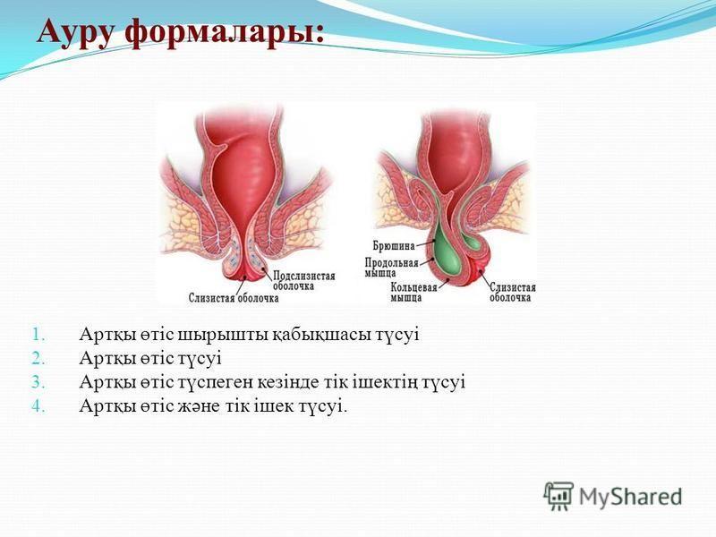 Ауру формалары: 1. Артқы өтіс шырышты қабықшасы түсуі 2. Артқы өтіс түсуі 3. Артқы өтіс түспеген кезінде тік ішектің түсуі 4. Артқы өтіс және тік ішек түсуі.