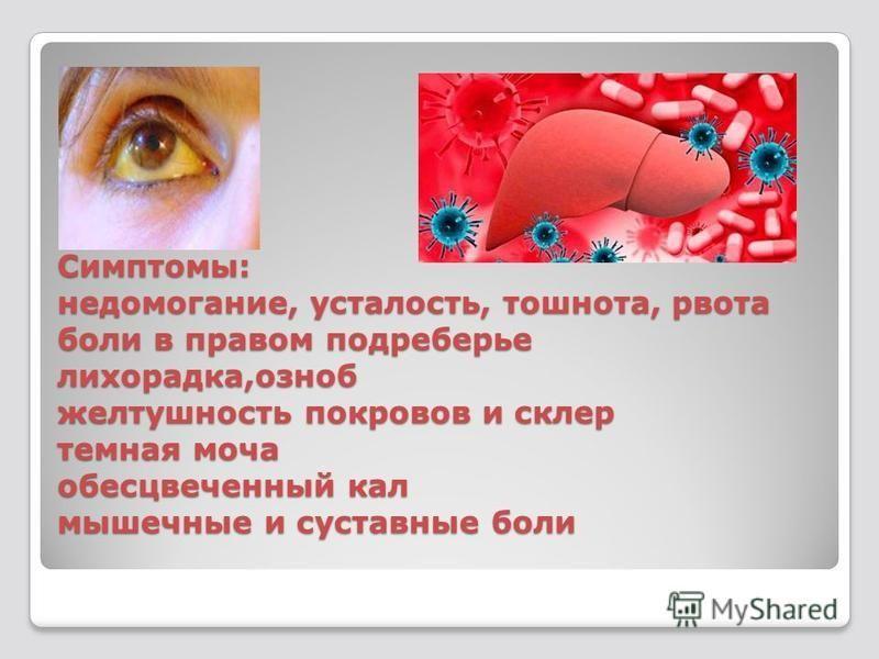 Симптомы: недомогание, усталость, тошнота, рвота боли в правом подреберье лихорадка,озноб желтушность покровов и склер темная моча обесцвеченный кал мышечные и суставные боли