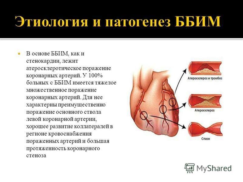 В основе ББИМ, как и стенокардии, лежит атеросклеротическое поражение коронарных артерий. У 100% больных с ББИМ имеется тяжелое множественное поражение коронарных артерий. Для нее характерны преимущественно поражение основного ствола левой коронарной