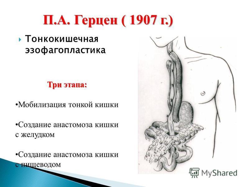П.А. Герцен ( 1907 г.) Три этапа: Мобилизация тонкой кишки Создание анастомоза кишки с желудком Создание анастомоза кишки с пищеводом Тонкокишечная эзофагопластика