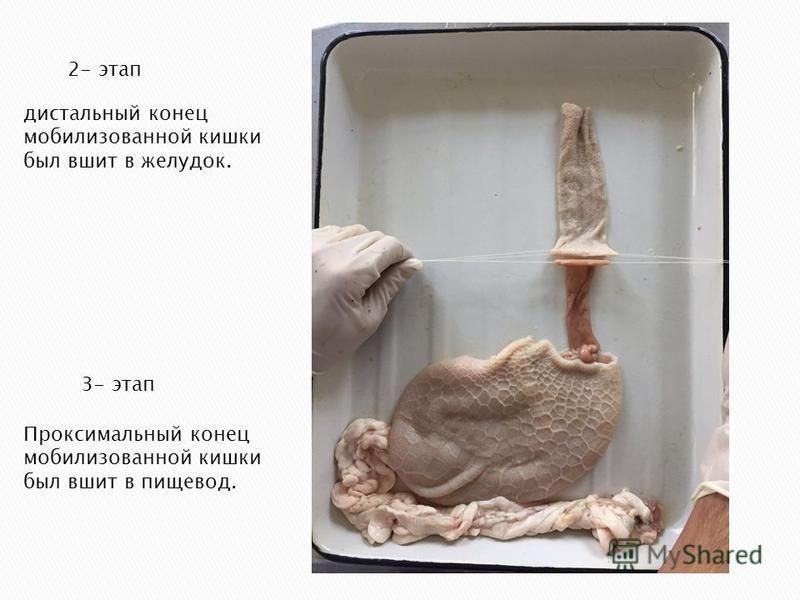 Проксимальный конец мобилизованной кишки был вшит в пищевод. 2- этап 3- этап дистальный конец мобилизованной кишки был вшит в желудок.