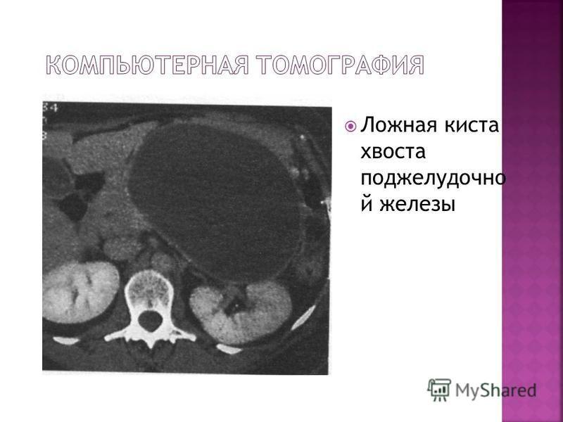 Ложная киста хвоста поджелудочной железы